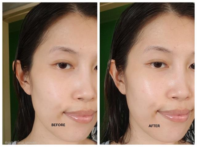 Medikoii Bio Calming Relief Toner before and after